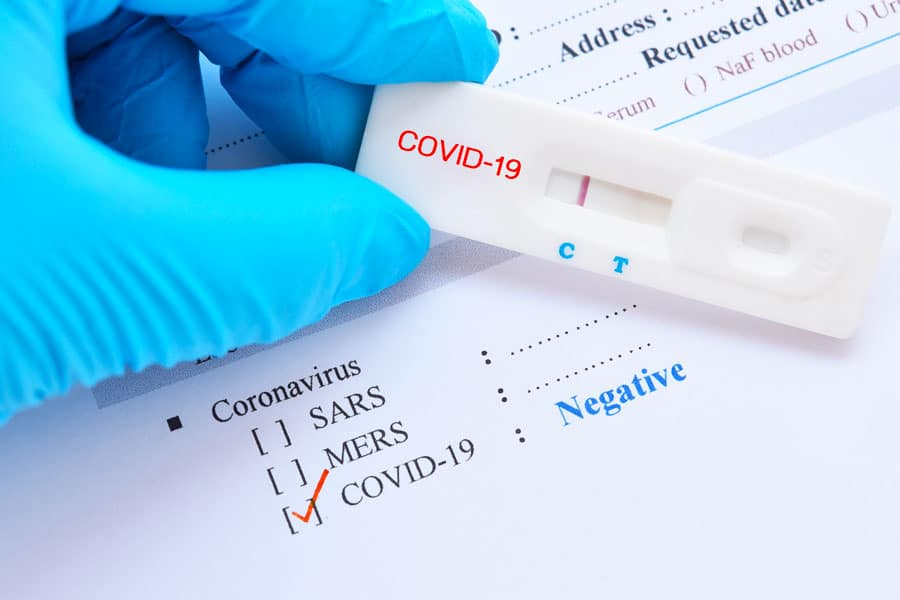 test PCR-Covid 19 pour voyager